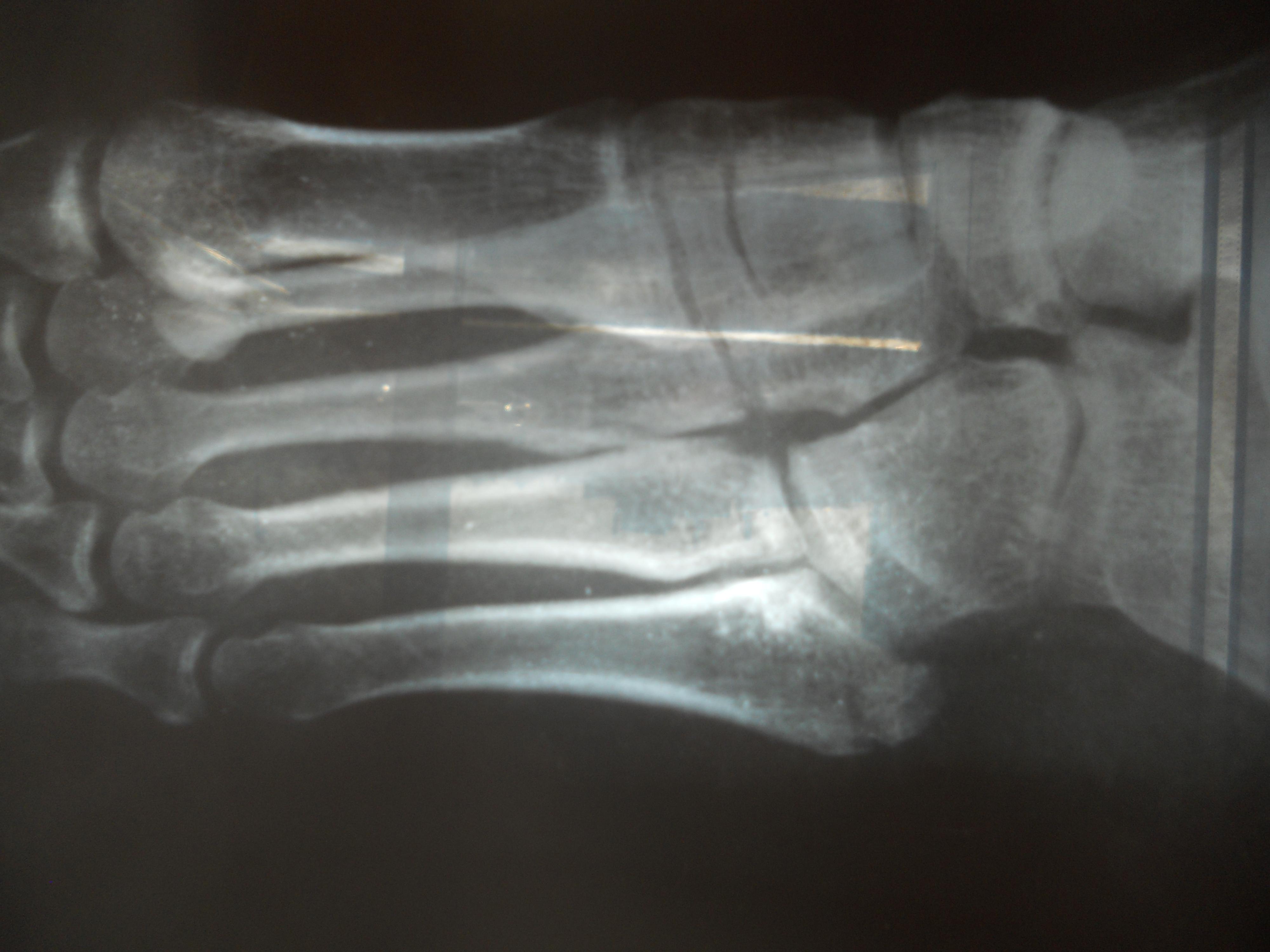 Перелом стопы у ребенка фото